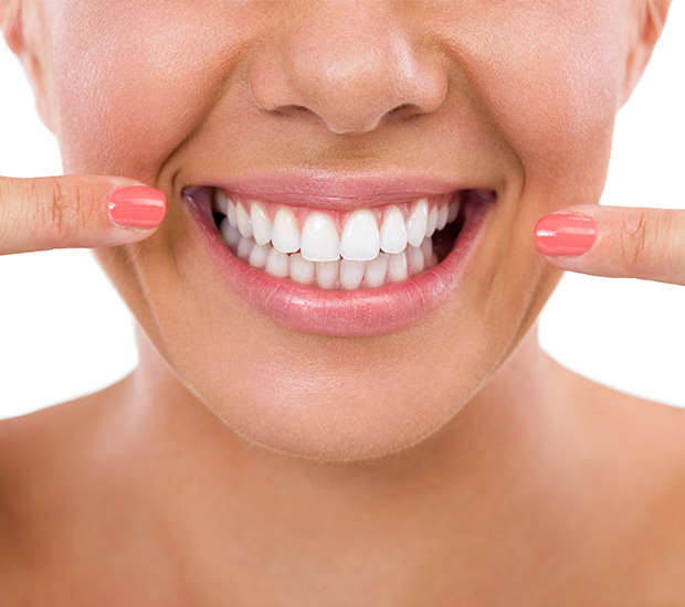 Newport Beach What Is Gum Contouring & Reshaping